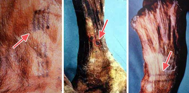tatuajes de la momia Otzi